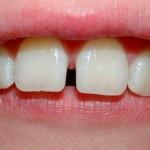 Inconformidad por el color, tamaño y forma de los dientes