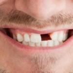 Pérdida parcial o total de piezas dentales